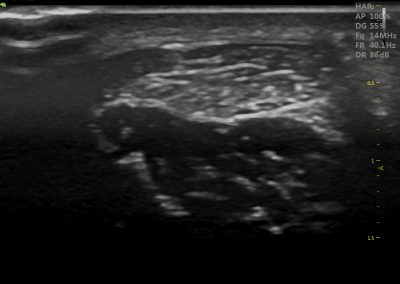 Achilles Tendon Ultrasound